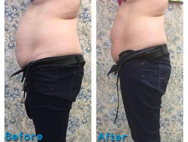 Fat Reduce & Skin Tightning