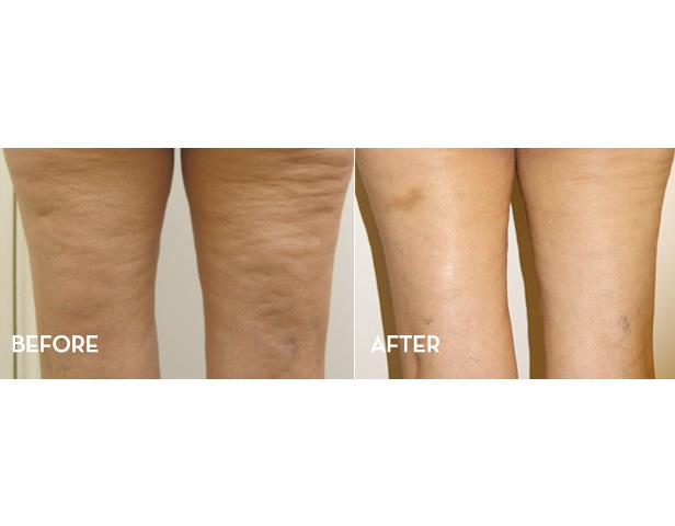 cellulite-treatment-2