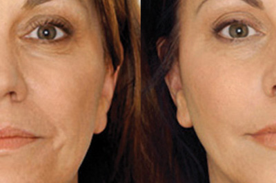 Anti Wrinkle Face Treatment with lipofirm