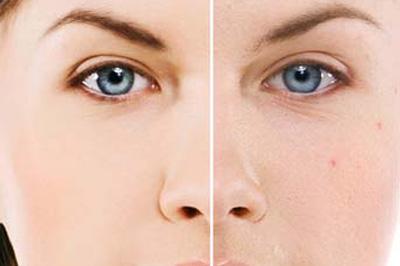 Anti Acne Facial